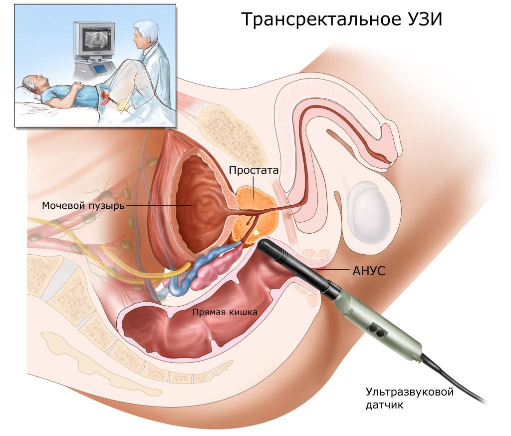 Трансвагинальное узи и вагинальное узи