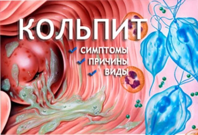 Cимптомы и лечение гинекологического заболевания - Кольпит